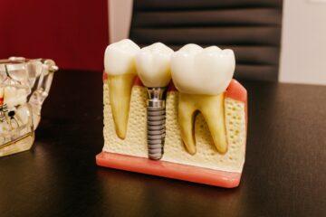 Tipuri de implanturi dentare populare in randul pacientilor
