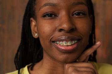 Ce ar trebui să știi înainte de a-ți pune un aparat ortodontic?